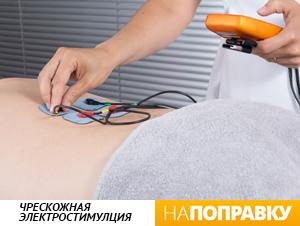 Чрескожная электрическая стимуляция нервов