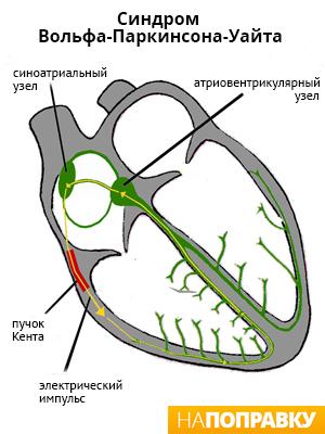 Синдром Вольфа-Паркинсона-Уайта (схема)