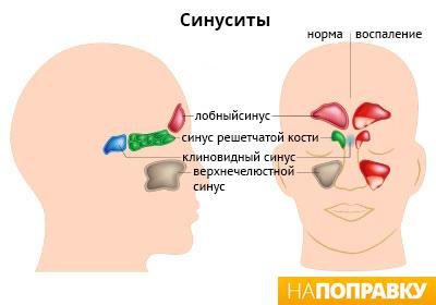 расположение синусов.jpg