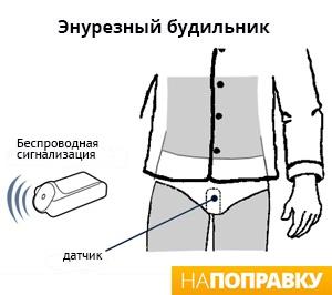 Устройство энурезного будильника (схема)