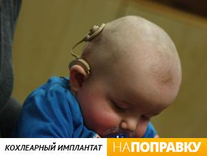 Ребенок с кохлеарным имплантатом (внешний вид устройства)