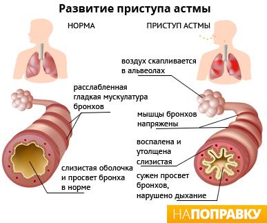 Развитие приступа астмы