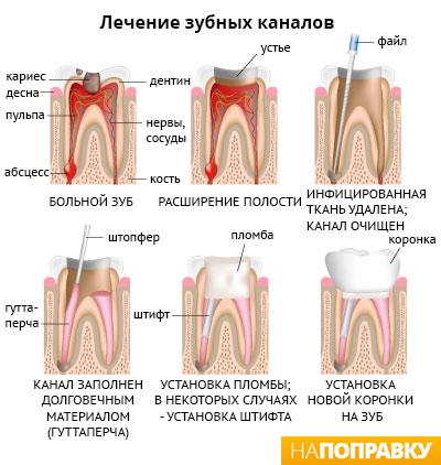 последовательность лечения зубных каналов