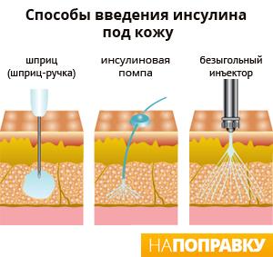 Способы введения инсулина