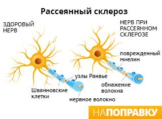 Механизм развития рассеянного склероза