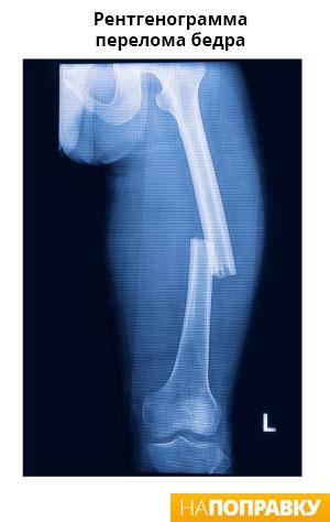 рентген перелома бедренной кости