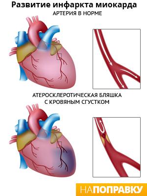 Как развивается инфаркт