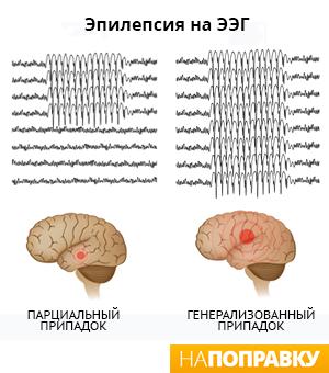 Виды припадков при эпилепсии на ЭЭГ (схема)