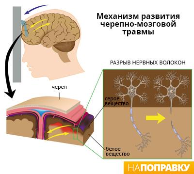 Механизм получения черепно-мозговой травмы