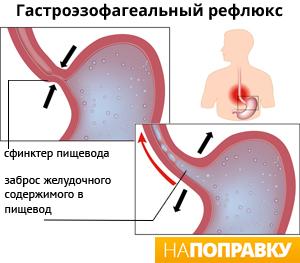 Изжога и пищеводный рефлюкс