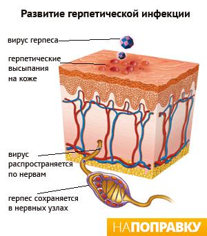 Как герпес проникает в организм