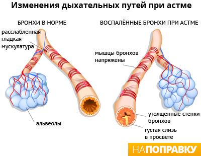 Развитие воспаления бронхов при астме