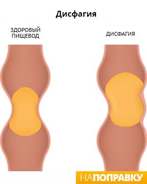 Пищевод при дисфагии (схема)