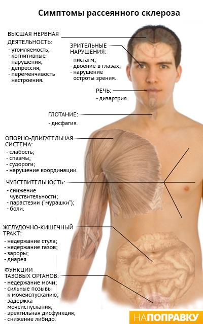 Симптомы рассеянного склероза (схема)