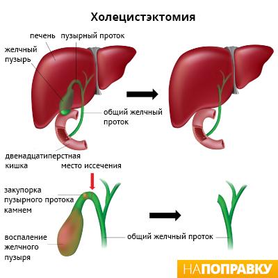 этапы операции по удалению желчного пузыря