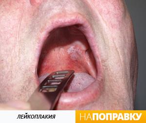 Лейкоплакия языка и нёба