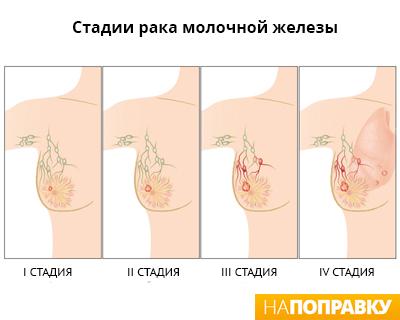 Стадии-рака-груди-(крупнее).jpg