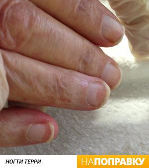 Ногти Терри (белые ногти)