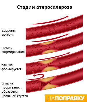 состояние артерий при атеросклерозе