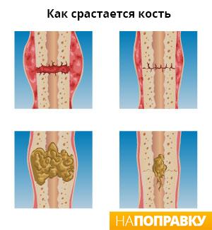 этапы заживления перелома