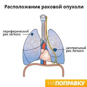 Центральный и периферический рак легких (схема).jpg