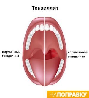 сравнение миндалин здорового и воспаленного горла